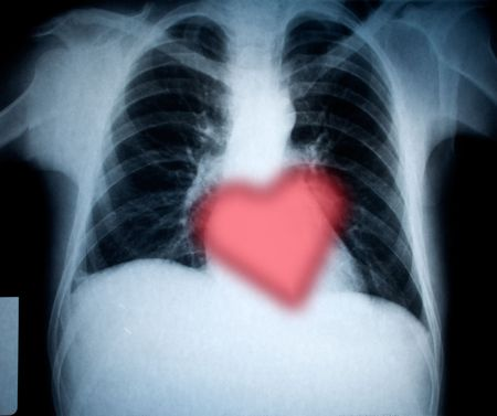chest xray and heart for valentines holiday photo