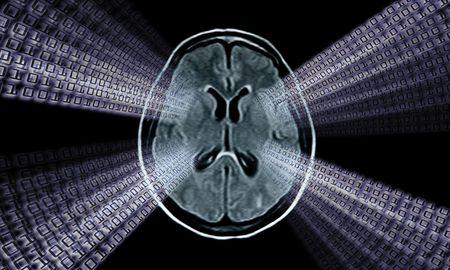 brain mri scan image for medical diagnosys