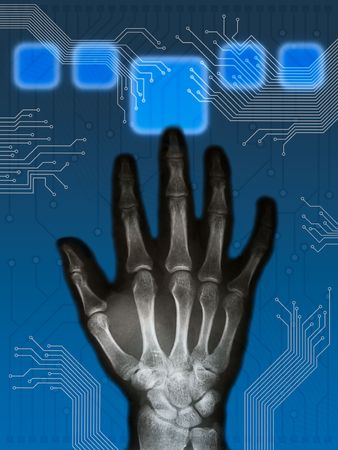 beautiful xray hand and hitech background composition Stock Photo - 3865897