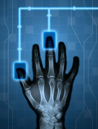beautiful xray hand and hitech background composition Stock Photo - 3879003