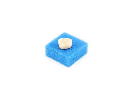 prothetic: bonded crown non precious of lower right six tooth (on a blue sponge) Stock Photo
