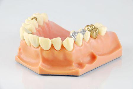 modèle dentaire montrant différents types de traitements (or Couronne, porcelaine veener, or inlays, amalgame et obturations composites)