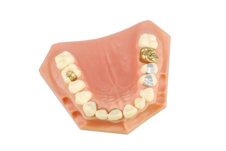 composite: modelo dental mostrando diferentes tipos de tratamientos (corona de oro, veener de porcelana, incrustaciones de oro, amalgama y empastes)