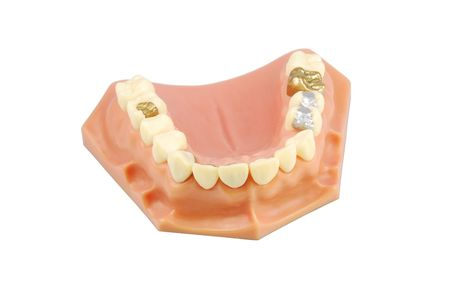 inlays: dental model showing different types of treatments (gold crown, porcelain veener, gold inlays, amalgam and composite fillings)