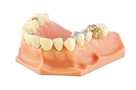 prothetic: dental model showing different types of treatments on white (gold crown, porcelain veener, gold inlays, amalgam and composite fillings)