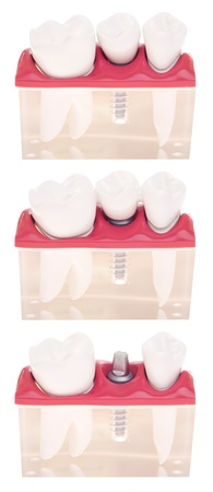 dental model with different types of treatments (implant placement, bonded bridge, crown over implant) isolated on white background photo