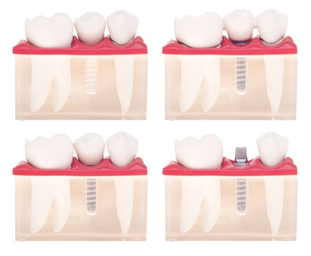 prothetic: dental model with different types of treatments (implant placement, bonded bridge, crown over implant) isolated on white background
