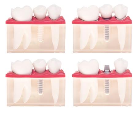 fixed: modelo dental con diferentes tipos de tratamientos (colocaci�n del implante, puente en r�gimen de servidumbre, corona sobre implante) aislados sobre fondo blanco