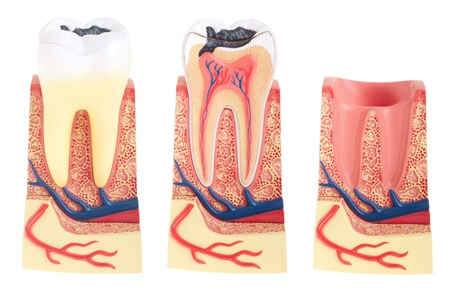 beenderige: tand anatomie collectie (vitale tand, structuur, bot, ligament en socket) geïsoleerd op witte achtergrond  Stockfoto