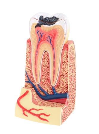 beenderige: tand anatomie (vitale tand, structuur, bot, ligament) geïsoleerd op witte achtergrond