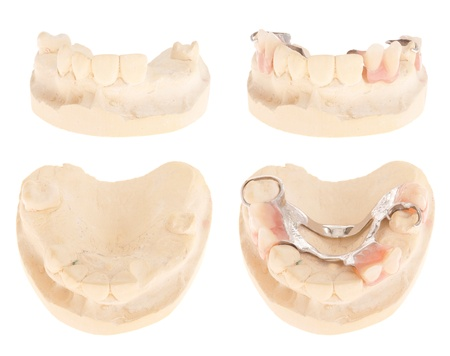 periodontics: cast model with missing teeth and with chrome cobalt denture (isolated on white background) Stock Photo
