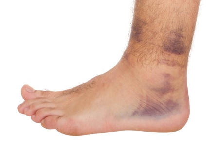 sprain: young male with sprained ankle isolated on white background