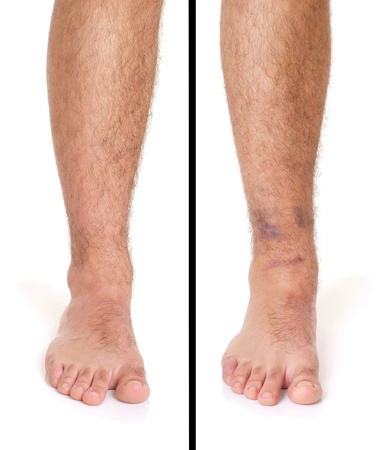 young male with sprained ankle isolated on white background (healthy vs unhealthy) photo