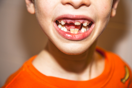 Close-up of child of eight years with the problem of not loosing his baby teeth - persistent baby teeth, also called shark disease - after surgery removing of milk teeth