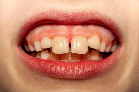 Caucasian European school boy showing his projecting upper front teeth