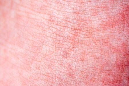 Scharlach beginnt mit einem roten Ansturm und der Erdbeerzunge Danach schält sich oft die betroffene Haut - Hier roter Hautanfall Standard-Bild