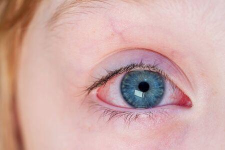 Zbliżenie podrażnione czerwone przekrwione oko - zapalenie spojówek.