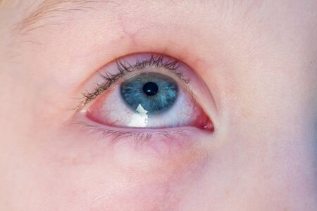 Gros plan de l'œil injecté de sang rouge irrité - conjonctivite Banque d'images