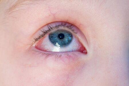 Nahaufnahme eines gereizten roten blutunterlaufenen Auges - Konjunktivitis Standard-Bild
