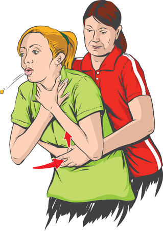 recovery position: Heimlich maneuver performing Illustration
