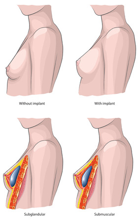 breast: Breast implants