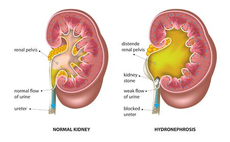 Kidney stone blocked ureter (hydronephrosis)