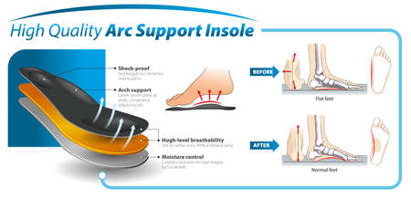 Vector graphic design for three-layered shoe arch support insole -  infographic template. Illustration