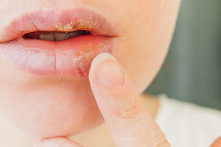 Close up of girl lips affected by herpes. Treatment of herpes infection and virus. Part of young woman face with finger touching pain on lips with herpes affected. Beauty dermatology concept 스톡 콘텐츠