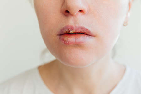 Close up of girl lips affected by herpes. Treatment of herpes infection and virus. Part of young woman face, lips with herpes affected. Beauty dermatology concept