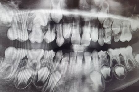 X-RAY PICTURE OF DAIRY AND NEW CHILDRENS TEETH. Stok Fotoğraf