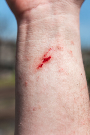 drop of blood on the incised wound on the palm of your hand. close-up