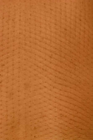 texture of human skin after massage with needles, clouse-up.