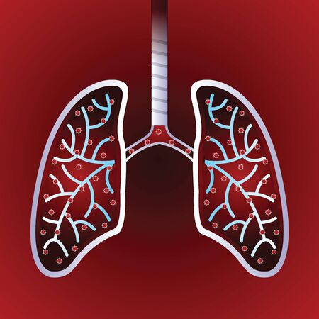 Virus and bacteria infected the Human lungs. Corona virus for awareness against disease spread. vector illustration.