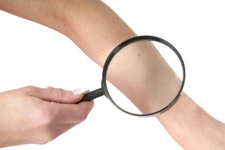 lupa: parte, la lupa y la piel
