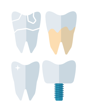 dental impression: Tooth implant vector illustration. Tooth implant vector isolated on white background. Tooth implant vector icon illustration. Tooth implant vector isolated vector