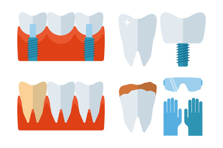 Dentist tooth implants and stomatology equipment vector illustration.