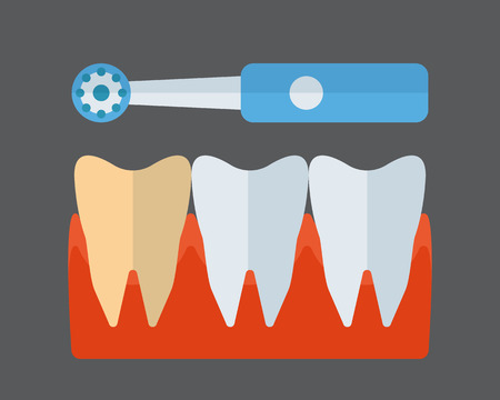bristles: Tooth brush and implants vector icon.