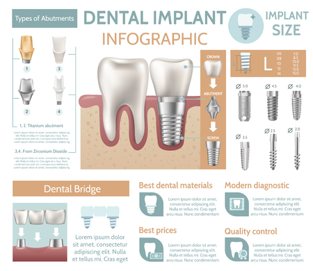 Dental implant tooth care medical center dentist clinic website infographic poster vector illustration Vectores