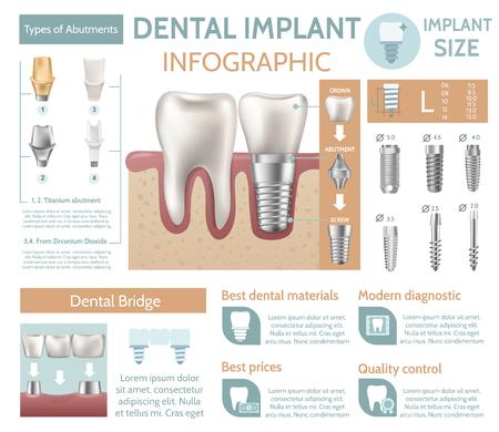 Dental implant tooth care medical center dentist clinic website infographic poster vector illustration Illustration
