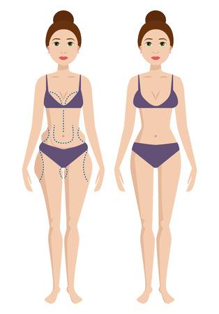 Corpo di chirurgia plastica donna correzione anaplasti medicina trattamento della pelle salute salute procedura illustrazione vettoriale Archivio Fotografico - 86812931