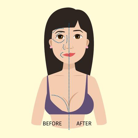 성형 수술 피부 미용 치료 절차 벡터 일러스트 레이션
