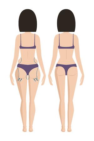 Corpo di chirurgia plastica donna correzione anaplasti medicina trattamento della pelle salute salute procedura illustrazione vettoriale Archivio Fotografico - 87062349