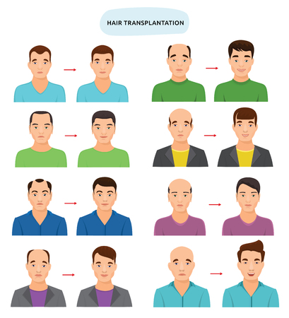 Hair transplant vector hairy transplantation after hairloss and baldness for bald man illustration set of hairless male character and haired person with haircat isolated on white background Illustration