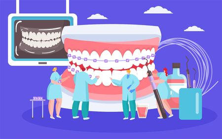 Installing dental braces vector illustration with dentists mini people with huge mouth orthodontic cocept. White spots braces on teeth, stomatology, dentistry, orthodontry healthcare. Ilustração