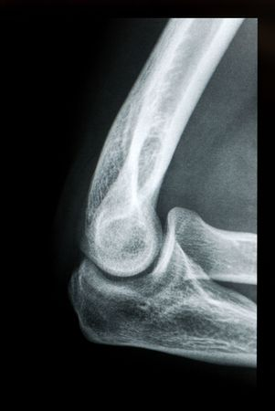 Elbow X-ray view from radiology imagery.