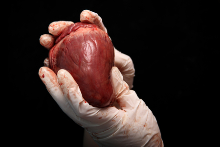 abstract illegal organ transplantation. A human heart in the hand of a surgeon woman. International crime. Assassins in white coats. Death and money. Heart transplant isolated on black background.