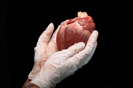 abstract organ transplantation. A human heart in woman's hand. Saving lives hopelessly sick. Complex surgical operations. International crime. Assassins in white coats. isolated on black background. Stock Photo
