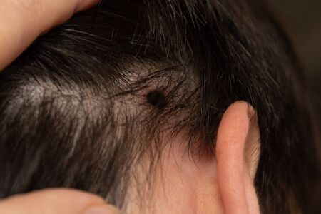 laser mole removal. trace from the procedure. Scar on the second knock after burning papillomas with a laser. Trail of burns in the hair.