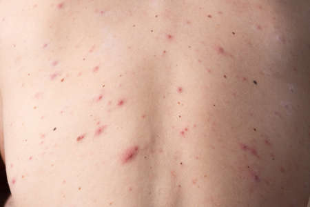 closeup a man back who having varicella blister or chickenpox