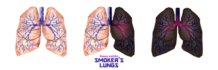 Smokers lungs set in low poly. Healthy lungs, sick lungs, cancer lungs. Toxic influence of tobacco by carcinogenic compound of cigarette. Vector.